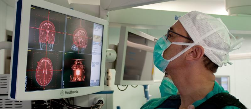 neurocirugía funcional