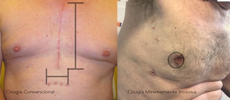 Cirugía Cardiovascular Mínimamente Invasiva