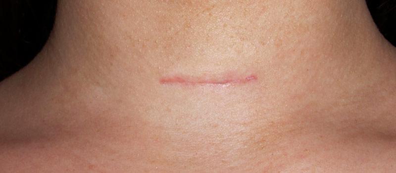 Cicatriz de cirugía de tiroides