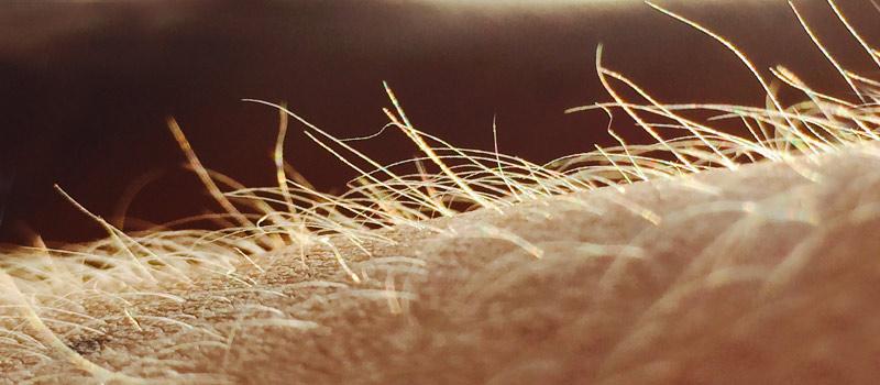 Secuelas de Cirugía de Tiroides en la piel