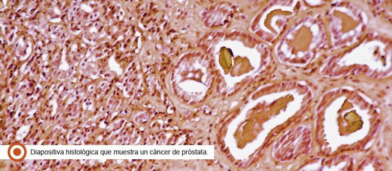 cancerprostata