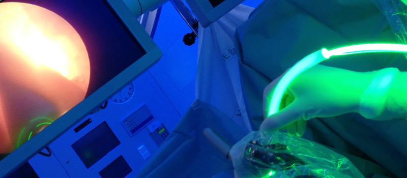 laser_verde