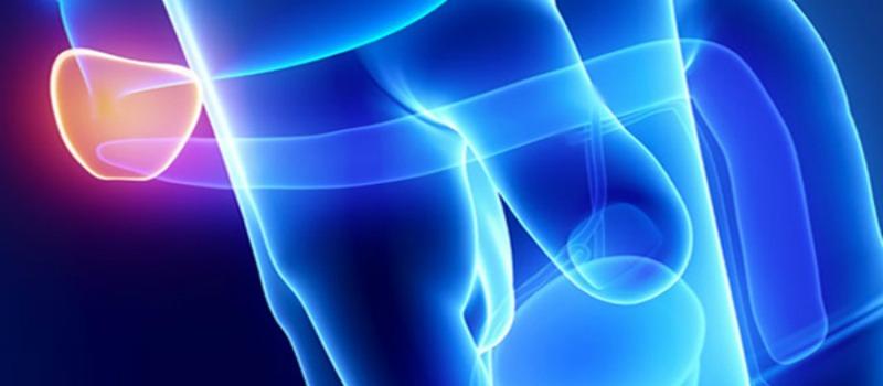 hiperplasia-cancer de próstata