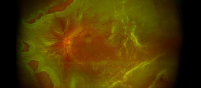 Desprendimiento de retina o Despreniment de retina