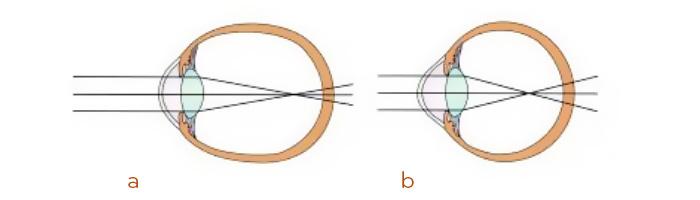 Explicación miopía y glaucoma
