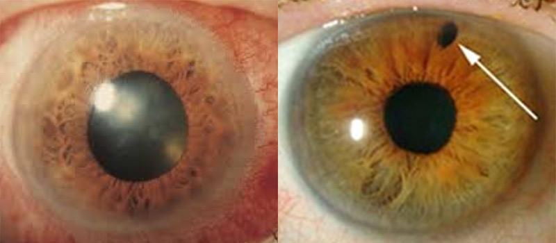 Crisis del glaucoma agudo: Síntomas del glaucoma agudo, tratamiento y consecuencias
