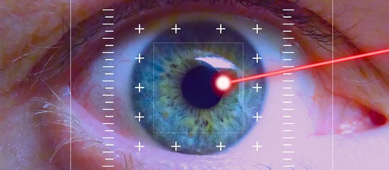 Trabeculoplastia láser selectiva (SLT), cirugía láser para el glaucoma