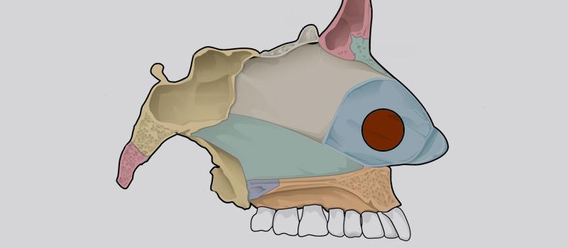 Perforación del tabique nasal - Perforació del septe nasal