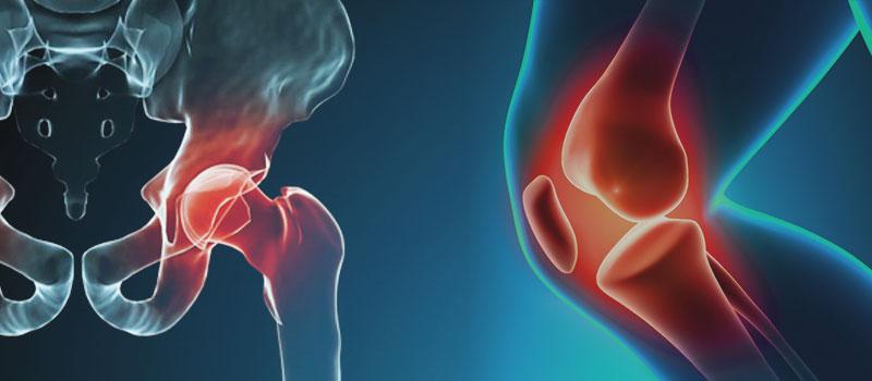 Infección de prótesis de rodilla o de cadera