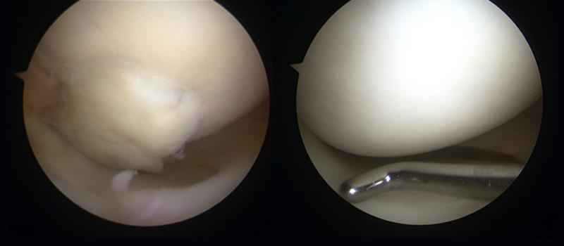lesión condral ¿Qué es y qué influye en el tratamiento de la lesión de cartílago?