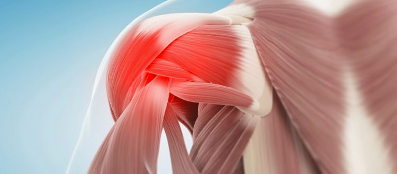 lesión del manguito rotador