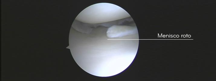 Lesión de menisco roto