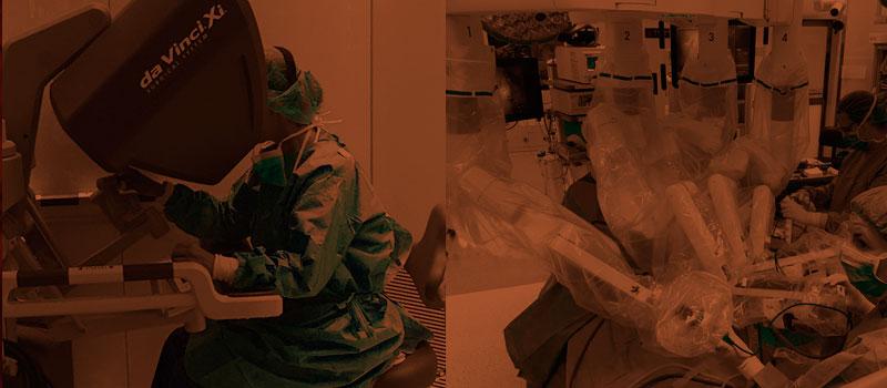 Vasovasostomía robótica vasectomía