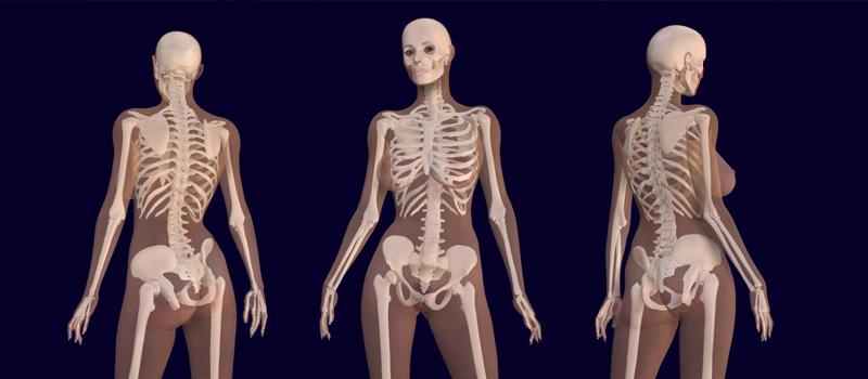 Osteoporosis-menopausia