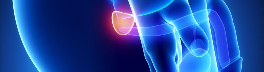 vasectomia afecta prostata